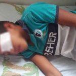 Niño perdió un ojo por negligencia.